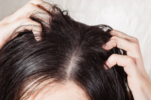 Read more about the article 5 effective home remedies to get rid of dandruff