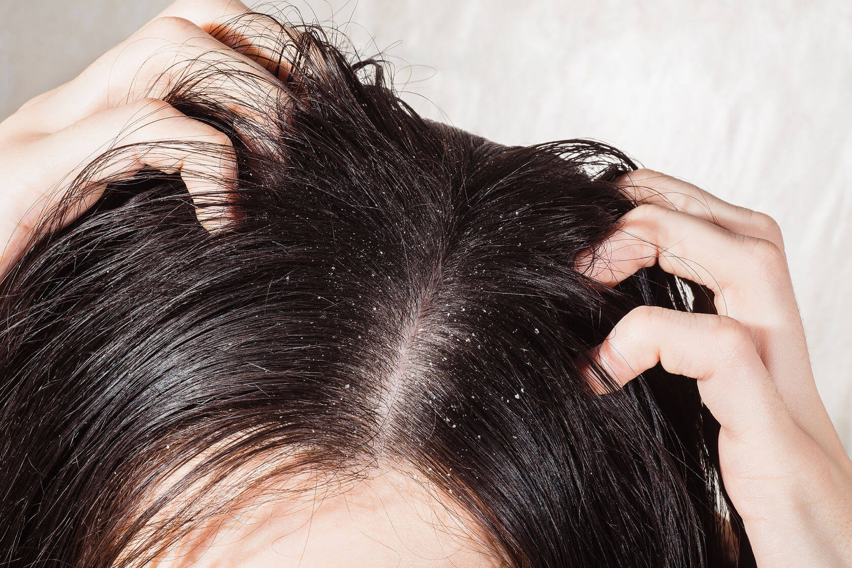 You are currently viewing 5 effective home remedies to get rid of dandruff